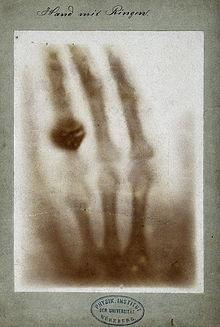Roentgen first x-ray Annas hand